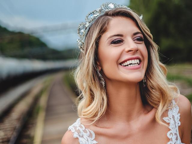 Sbiancare i denti in modo naturale: i trucchi per un sorriso da diva