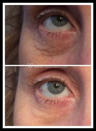 Prima e dopo - rughe occhi