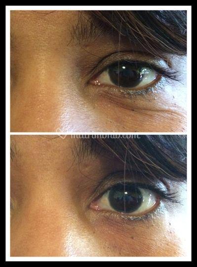 Prima e dopo - contorno occhi