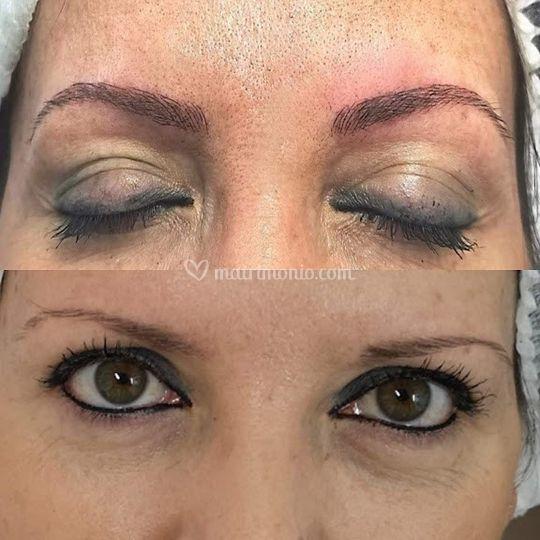 Dermopigmentazione sopraccigli