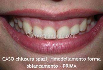 Chiusura degli spazi e rimodellamento denti - PRIMA