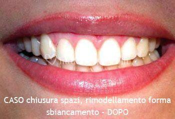 Chiusura degli spazi e rimodellamento denti - DOPO