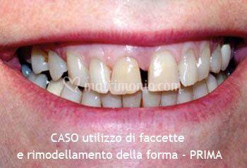 Utilizzo di faccette e rimodellamento della forma dei denti- PRIMA