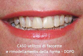 Utilizzo di faccette e rimodellamento della forma dei denti - DOPO