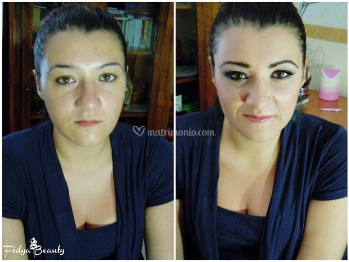 Correzione viso e sopracciglia
