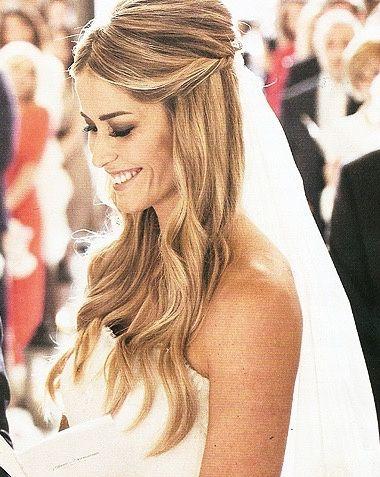 Spose Con Le Orecchie A Sventola Pagina 2 Salute Bellezza E