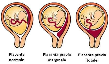 Placenta bassa o previa - 1