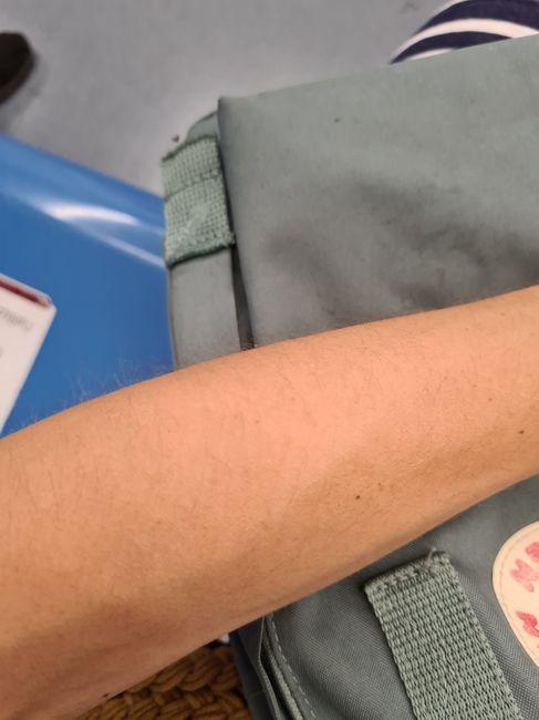 Depilazione sulle braccia 1