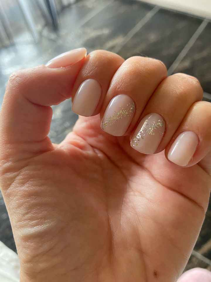 Problema unghie - 1