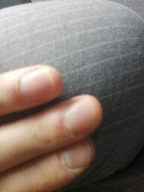 Ricostruzione unghie uomo 1