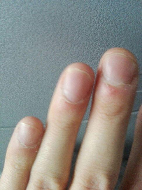 Ricostruzione unghie uomo 3