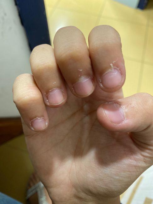 Problema pelle unghie 1