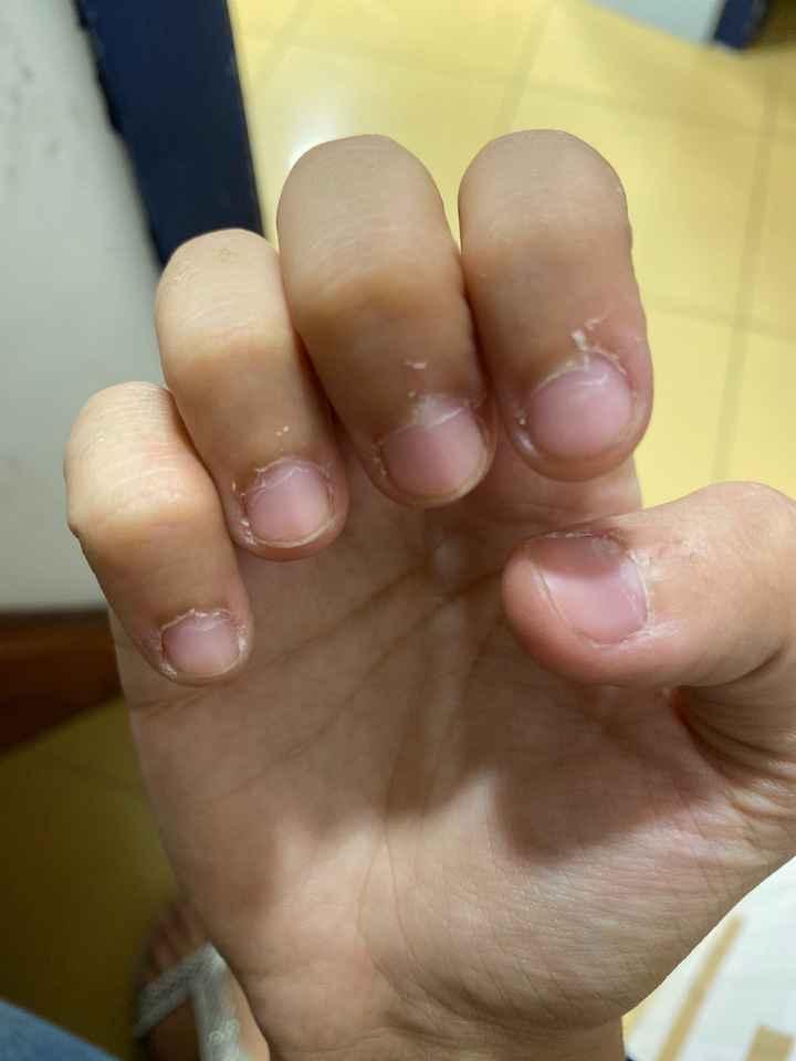 Problema pelle unghie - 1