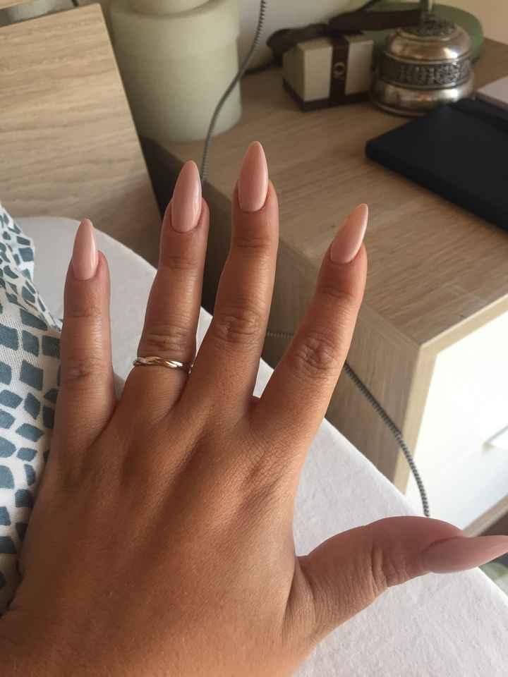 Anello di fidanzamento troppo piccolo! - 1