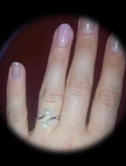 La foto del vostro anello! - 1