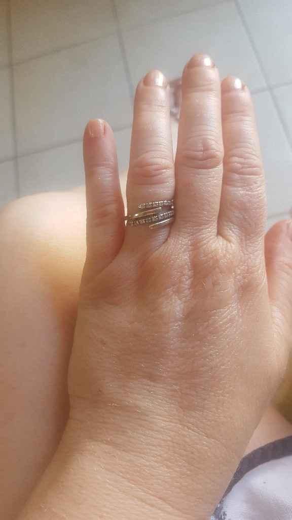 Il mio anello - 1