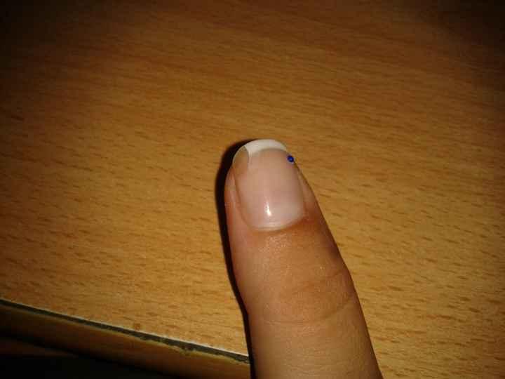 Aiuto unghie